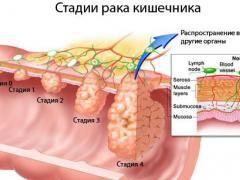 4 Стадія раку кишечника - найважча стадія захворювання