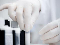 Аналіз крові. Підвищено сечовина
