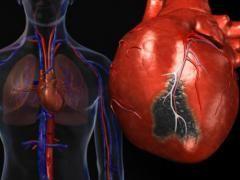 Форми інфаркту міокарда