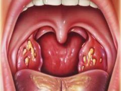 Гнійники в горлі - методи лікування