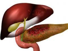 Історія хвороби хронічний панкреатит