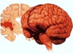 Які наслідки геморагічного інсульту?