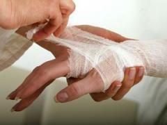 Лікування опіків в домашніх умовах
