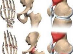 Народне лікування остеоартрозу (не медикаментозні засоби)