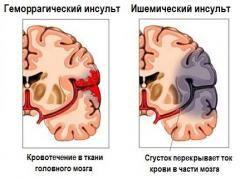 Обширний інсульт - наскільки це небезпечно?