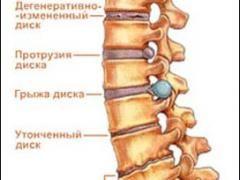 Остеохондроз. Симптоми грудного остеохондрозу