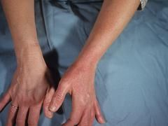 Бешиха шкіри: профілактика і лікування