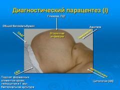 Синдром портальної гіпертензії