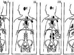Стадії лімфогранулематозу