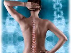 Вправи при лікуванні остеохондрозу