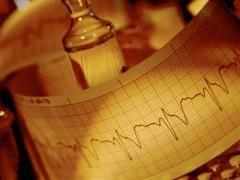 Види аритмії серця