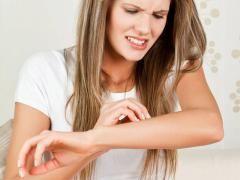 Пухирі на тілі: правильно позбавляємося від них
